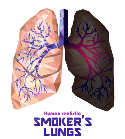 Low poly realistic human lungs and bronchus with cancer inflammation disease. Smoker's lungs. Vector. 矢量图像