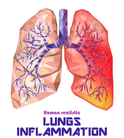 Low poly realistic human lungs and bronchus with cancer inflammation disease. Smokers lungs. Vector.