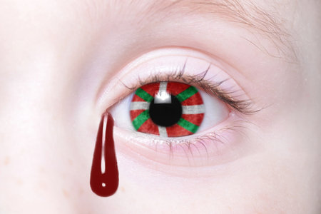 basque woman: humans eye with national flag of basque country with bloody tears. concept Stock Photo