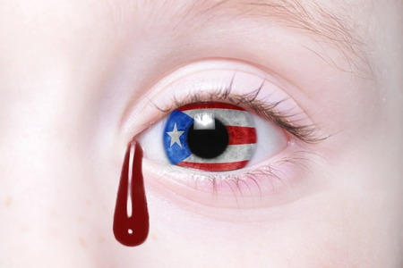 puerto rican flag: humans eye with national flag of puerto rico with bloody tears. concept