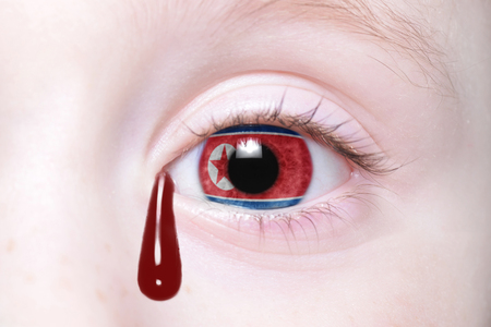 humans eye with national flag of north korea with bloody tears. concept Stock Photo