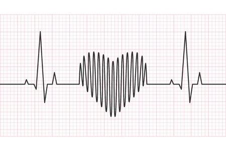 Heart rate line with grid in the background. Heartbeat, pulse and rhythm, electrocardiogram and ECG concept. Vector illustration.