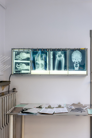 X-Ray pictures on the white screen on the wall