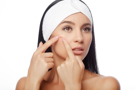 Young woman squeezing her pimple, removing pimple from her face. Woman skin care concept. Acne spot pimple spot skincare beauty care girl pressing on skin problem face. Stock Photo