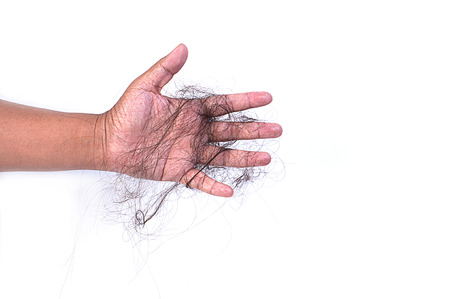 hair problem: women with hair problem holding loss hair in hand,on white background