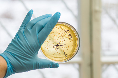 ecoli: Hand in glove holding Petri dish with bacteria growing in it