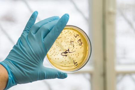 bacterias: Mano en guante con placa de Petri con las bacterias que crecen en �l