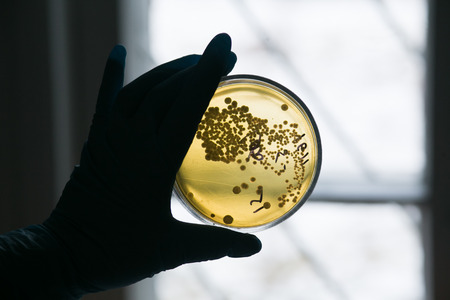 Hand in glove holding Petri dish with bacteria growing in it photo