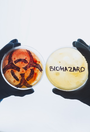 contaminated: Hands hold Petri dishes with biohazard word symbol sign. Contaminated water food concept. Dangerous infectious disease. Medical lab testing research. Bacterial infection control prevention outbreak Stock Photo