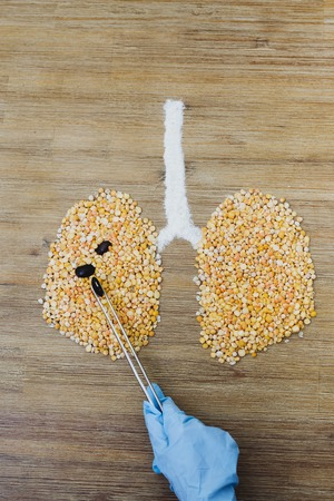 Doctor performing surgery on human lungs concept. Surgeon operating lung cancer tumor. Hand holding forceps. Cancer awareness. Lungs made of dry yellow peas. Air pollution smoking concept