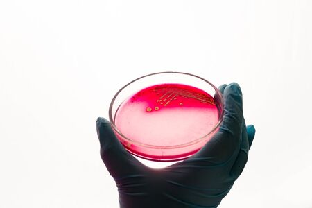 Hand holds Petri dish with Staphylococcus aureus bacteria. Medical lab testing for infection.Bacterial colony culture growth in blood agar plate, gram-positive cocci bacilli growing, beta hemolysis