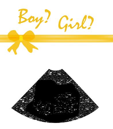 premature: The biggest gift of baby ultrasound diagnostics. Vector illustration. Illustration