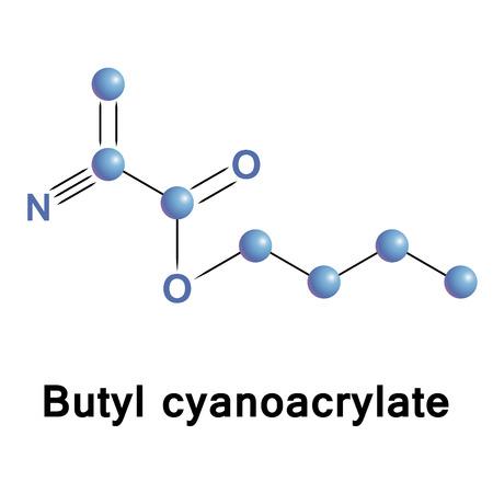 Butyl cyanoacrylate, BCA, NBCA, a cyanoacrylate ester, is a butyl ester of 2-cyano-2-propenoic acid. Vector medical illustration.