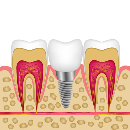 Vector illustration of a dental implant in bone between teeth for booklets, magazines, banner, website of a dental clinic.