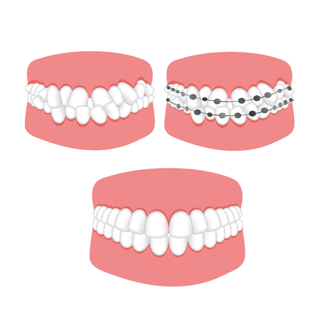 Orthodontic treatment of malocclusion of the teeth braces. Vector illustration for booklets, flyers, brochures, dental clinic website.