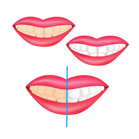 The effect of whitening toothpaste is shown on the teeth. Vector illustration for flyers, posters, dental clinic brochures and toothpaste packaging.