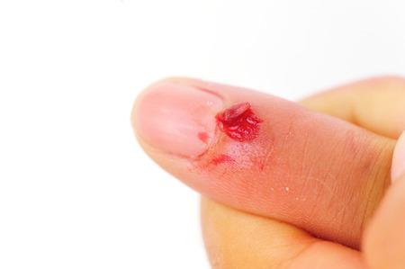 against white: injured fingers against white
