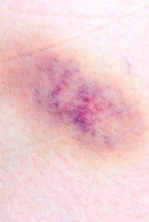 health care fight: bruise