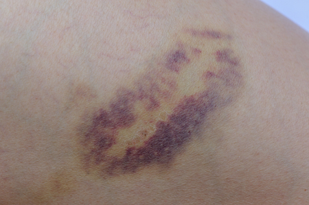 bruise injury on young woman thigh