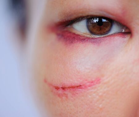 Injured woman with bruised eye