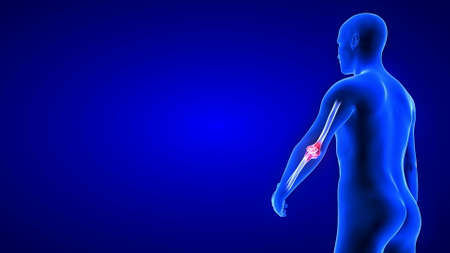 Elbow Pain illustration from rear view - close-up. Blue Human Anatomy Body 3D Scan render - blue background