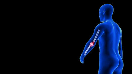 Elbow Pain illustration from rear view - close-up. Blue Human Anatomy Body 3D Scan render - black background
