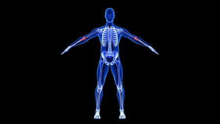 Elbow Pain. Blue Human Anatomy Body 3D Scan render on black background Фото со стока