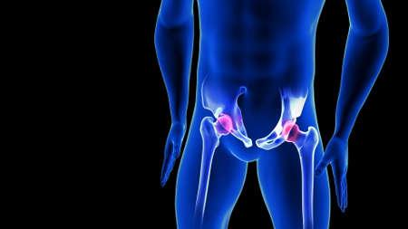 Hip Pain close-up illustration. Blue Human Anatomy Body 3D Scan render on black background