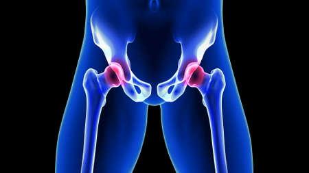 Hip Pain close-up illustration. Blue Human Anatomy Body 3D Scan render on black background Zdjęcie Seryjne