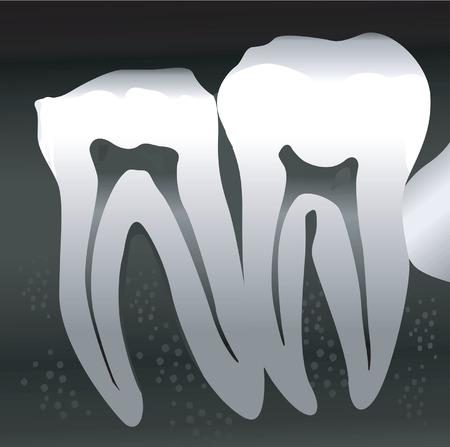 dientes sucios: Las secciones transversales de los dientes