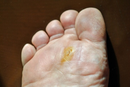 inflamation: A painful wound on the ball of the foot; following the extraction of a large splinter   A real wound, not makeup