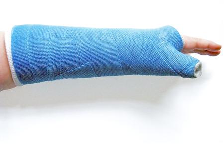 broken wrist: Mu�eca rota en el elenco Foto de archivo
