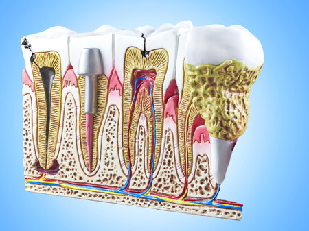 root canal: Teeth, dental section model.