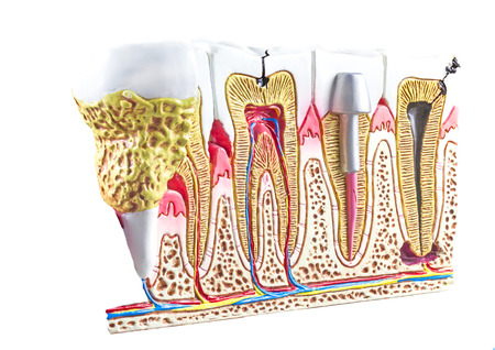 root canal: Dental section model, teeth anatomic background.