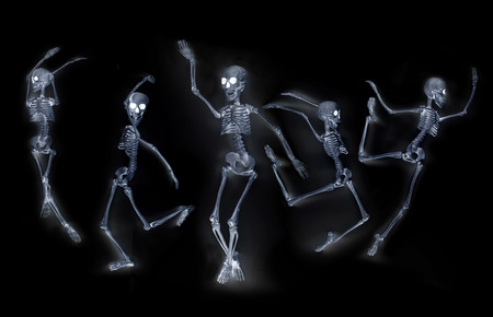 silly: Silly dancing skeletons as seen through an xray machine Stock Photo