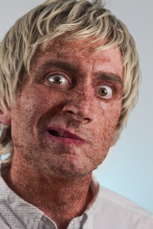 blonde haired: Portrait of a blonde haired man with very dry skin