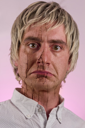 Portrait of a blonde haired man with very dry skin
