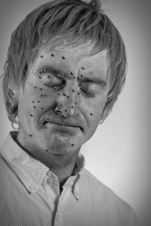 blonde haired: Bacteria virus sickness on blonde haired mans face Stock Photo