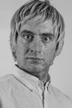 dry skin: Portrait of a blonde haired man with very dry skin