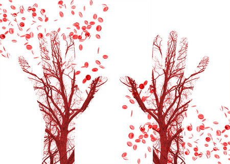 blood cells: Close up human blood vessels in male hand with blood cells in background