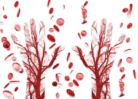 hemorragias: Cerrar los vasos sanguíneos humanos en mano masculina con células de la sangre en el fondo Foto de archivo