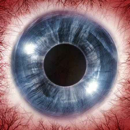 diseased: Red bloodshot eyeball for allergy imagery, 3D Illustration