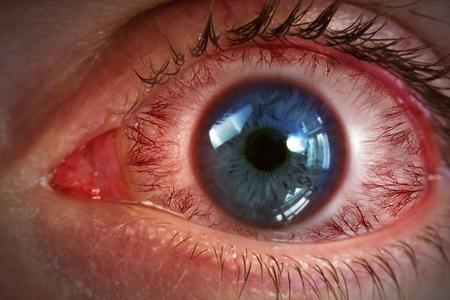アレルギー医療画像背景の赤い血走った眼球 写真素材
