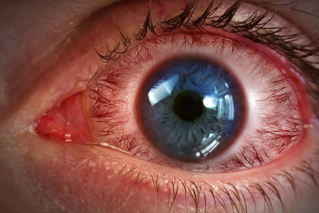 bloodshot: Red bloodshot eyeball for allergy medical imagery background