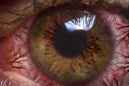 bloodshot: Macro close up red bloodshot eyeball for allergy imagery