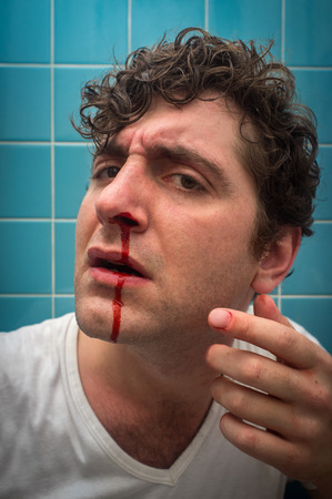 Curly haired man in bathroom with bad nose bleed Stock Photo