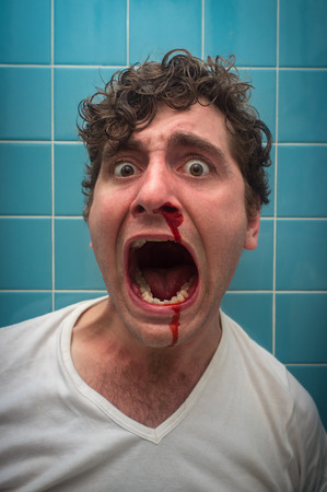 membranes: Curly haired man in bathroom with bad nose bleed Stock Photo