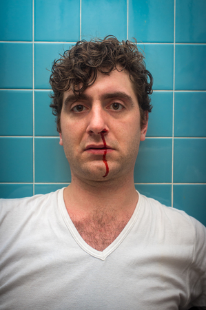 Curly haired man in bathroom with bad nose bleed Standard-Bild