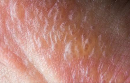 Cerca de macro ampollas erupción por hiedra venenosa en la piel humana Foto de archivo