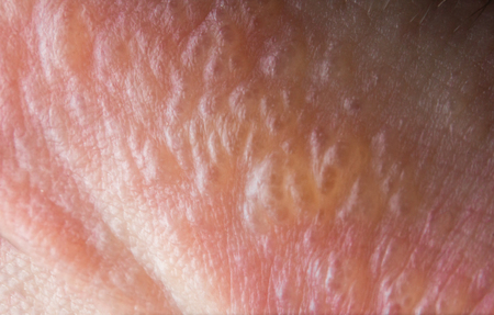 Close up macro poison ivy rash blisters on human skin Stock Photo